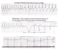 Rhythm strip of a person who was cardioverted