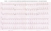 Picture of an ECG from a patient with PSVT