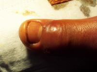 A moderate paronychia. Swelling and redness around the edge of the nail is caused by a large pus collection under the skin.