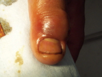 Picture of a moderate paronychia. Swelling and redness around the edge of the nail is caused by a large pus collection under the skin. Image courtesy of Christina L Kukula, DO.