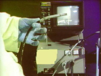 An endoscopic unit. The operator shows the probe.