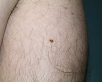 This mole is a dark, irregularly colored mole that needs to be removed with a deeper excision because the mole cells go farther into the skin. It will be removed by a punch excision process with stitches. Photo courtesy Joel Schlessinger, MD, Board Certified Dermatologist, lovelyskin.com.