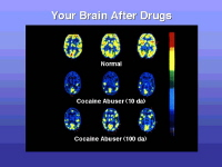 Long-term effects of drug abuse. This brain scan shows that once you become addicted to a drug like cocaine, your brain is affected (and clearly changed) for a long time.  The yellow shows a lot of brain activity in a normal person. Measured 10 days after using cocaine, a cocaine addict's brain shows much less normal activity.  For this same person, even after 100 days without using cocaine, the brain was still not back to a normal level of functioning.  Scientists are concerned that areas in the brain may never fully recover from drug abuse and addiction. Image courtesy of the National Institute of Drug Abuse (NIDA).
