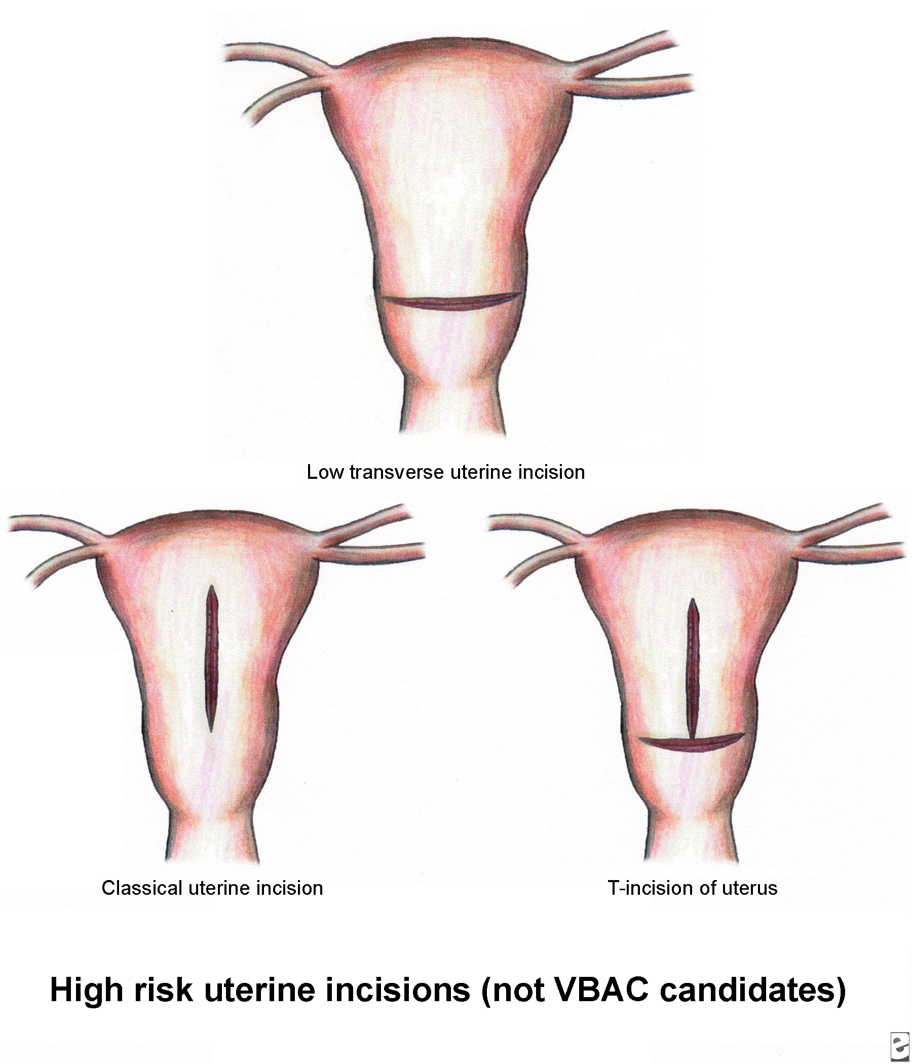 High-risk uterine incisions  C Section Incision