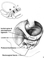 Level I is suspension and level II is attachment. The paracolpium suspends the vagina from the lateral pelvic walls in level I. These fibers extend vertically and posteriorly toward the sacrum. The vagina in level II is attached to the arcus tendineus fascia of pelvis and superior fascia of levator ani