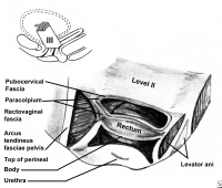 Level II and III detail. In level III, the vagina is fused to the medial surface of the levator ani muscles, urethra, and perineal body. The anterior surface of the vagina at its attachment to the arcus tendineus fascia pelvis forms the pubocervical fascia, while the posterior surface forms the rectovaginal fascia.