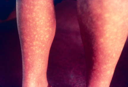 Picture of rash on legs due to dengue fever