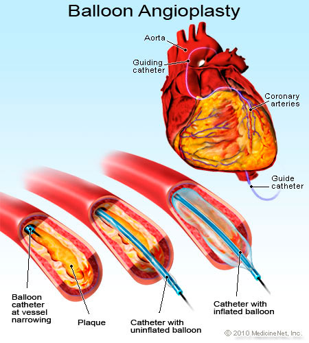 Picture of Balloon Angioplasty