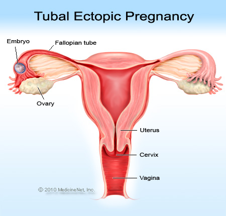 Picture of an ectopic pregnancy