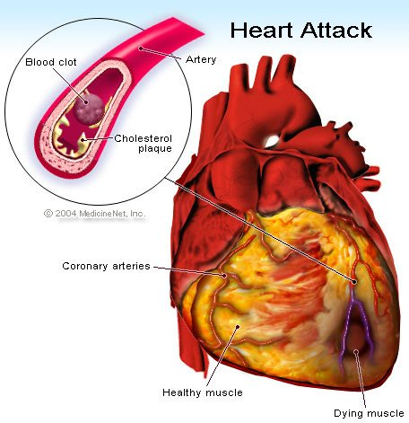 Picture of cholesterol plaque build-up and a blood clot, which can lead to a heart attack