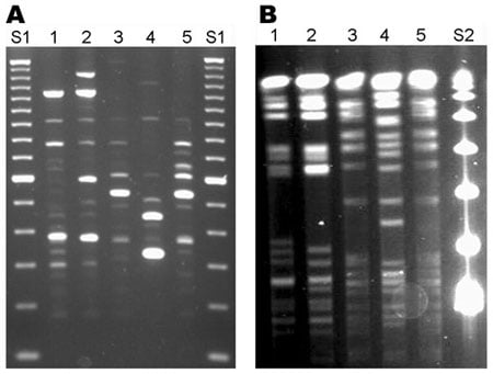 Bands or ladder like steps of PCR produced DNA of microbacterium