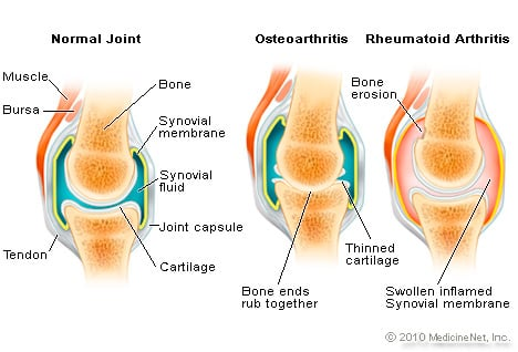 Picture of Osteoarthritis