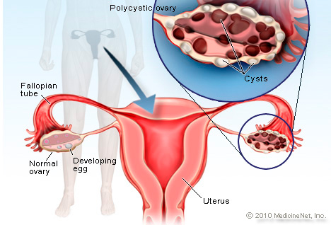 Illustration of Polycystic Ovary Syndrome
