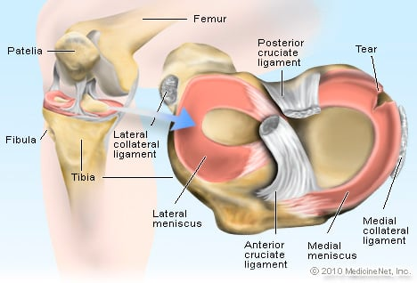Picture of Torn Meniscus