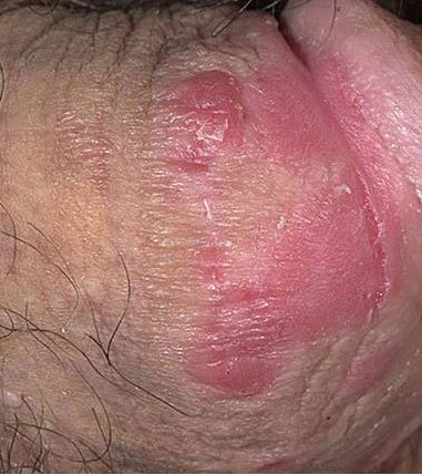 Protopic and Elidel are two topical immunosuppressive drugs that can work well for penis psoriasis 2