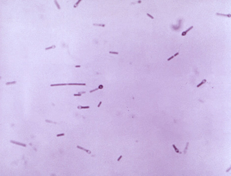 Picture of Clostridium tetani, with spore formation (oval forms at end of rods)
