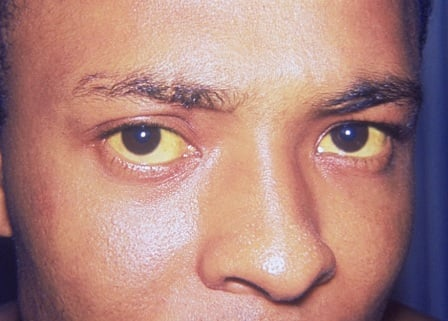 Picture of Jaundice (yellowing of the skin and the whites of the eyes)