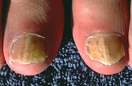 Picture of fungal nail infection on the big toes