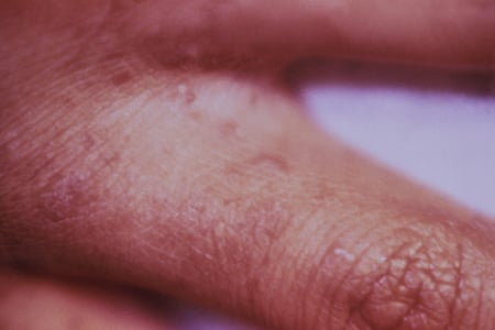 Picture of small pimple-like lesions in the finger web caused by scabies.