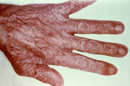 Picture of scabies rash on the hand.