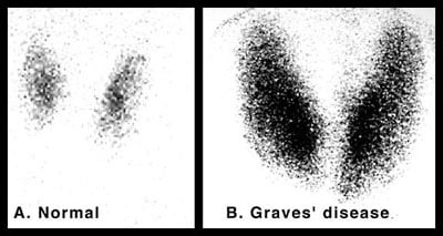Radioactive Iodine Thyroid Scan Image of Normal Thyroid and Image of Patient with Grave's Disease