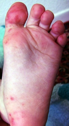 Picture of characteristic rash and blisters of hand foot and mouth disease