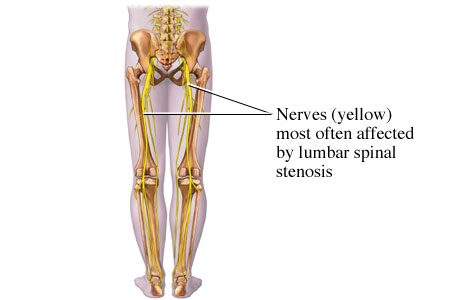 Picture of nerves affected by lumbar spinal stenosis
