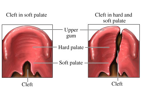 Picture of cleft palate examples