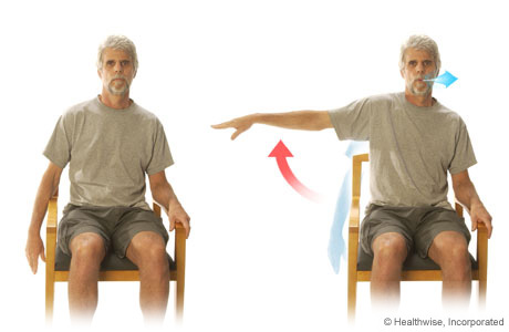 Picture of the arm-extension exercise for COPD