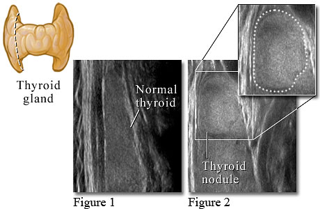 Ultrasound image of the thyroid