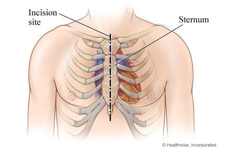 Picture of the chest incision for aortic valve replacement surgery