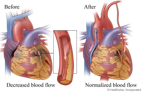 Picture of normalized blood flow rerouted around blocked coronary artery