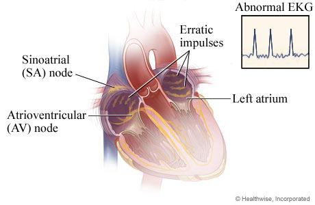How atrial fibrillation happens (abnormal EKG)