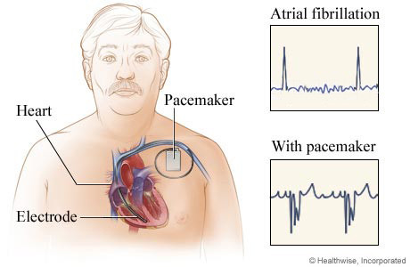 Where a pacemaker is placed