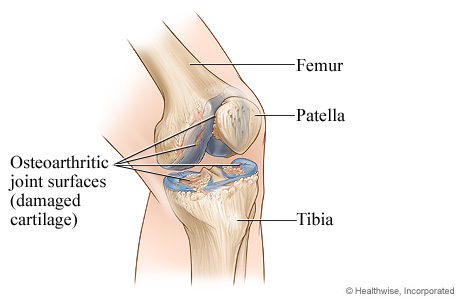 Knee joint with osteoarthritis