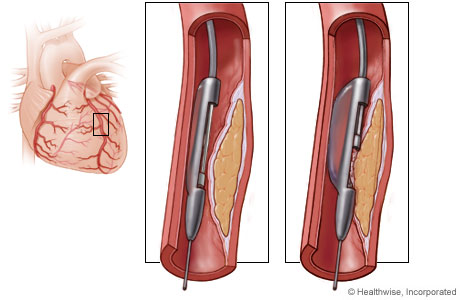 Picture of a directional atherectomy device removing plaque