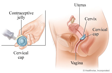 Picture of the cervical-cap method of birth control
