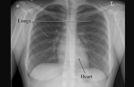 Image of a normal chest