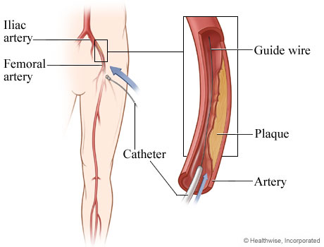 Picture of angioplasty for peripheral arterial disease, step 1