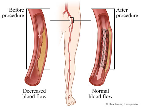 Picture of angioplasty for peripheral arterial disease, before and after