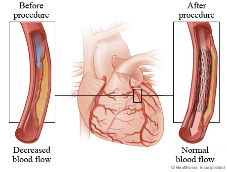Picture of how angioplasty restores normal blood flow to the heart