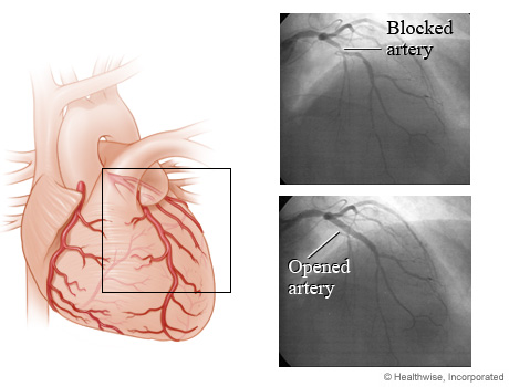 Images of a coronary artery before and after an angioplasty