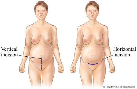Picture of C-section incisions