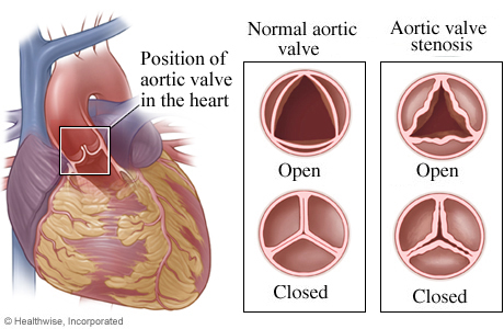 Picture of a normal aortic valve and aortic valve stenosis
