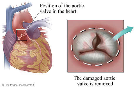 Picture of removing the damaged valve for aortic valve replacement