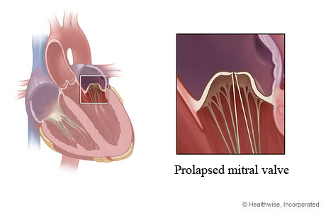 Picture of a prolapsed mitral valve