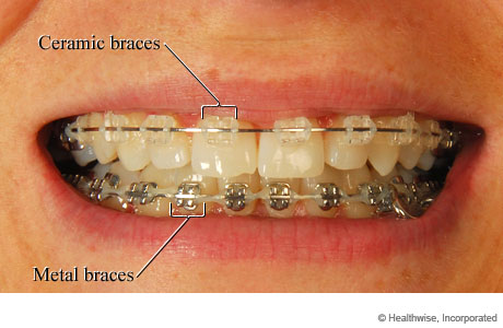 Ceramic braces and metal braces