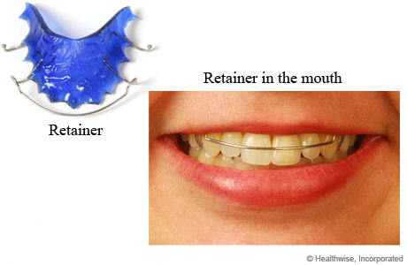 Retainer for holding teeth in place after braces are taken off