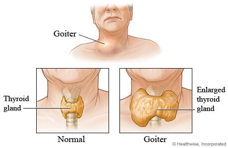 A normal-sized thyroid and a goiter