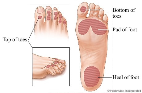 Picture of locations of foot ulcers